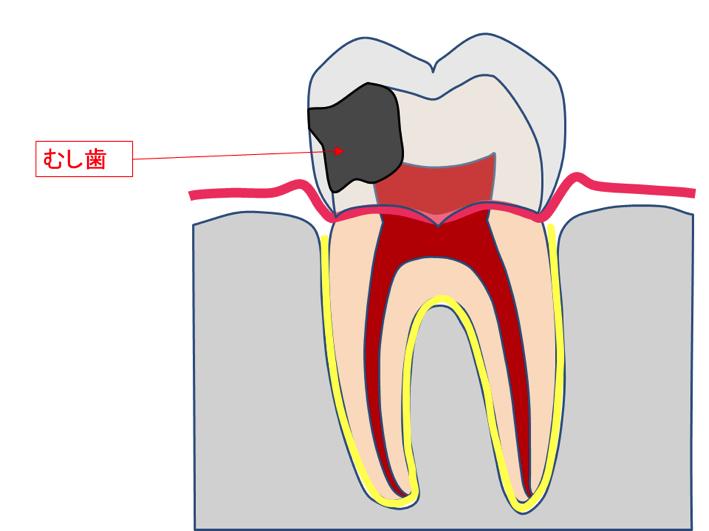の 神経 抜く 歯 を