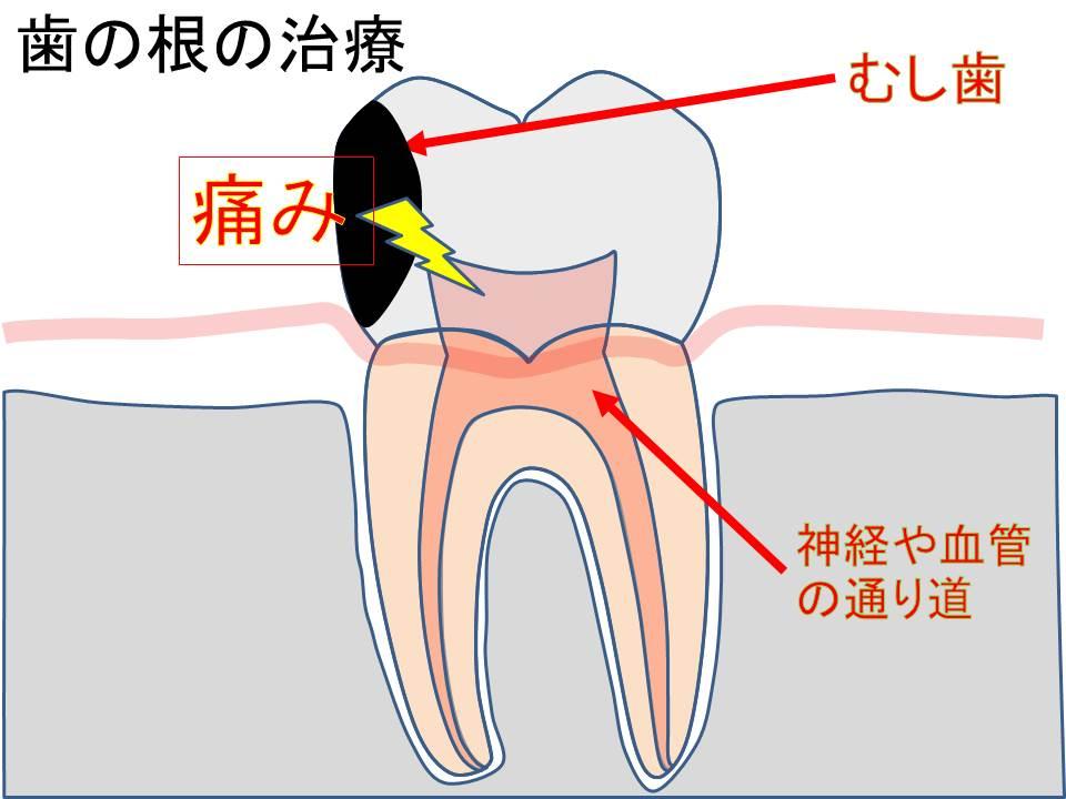 歯の絵_神経の治療
